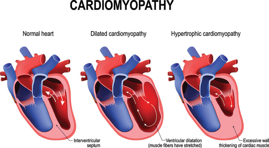 Chart Showing Cardiomyopathy in the Heart